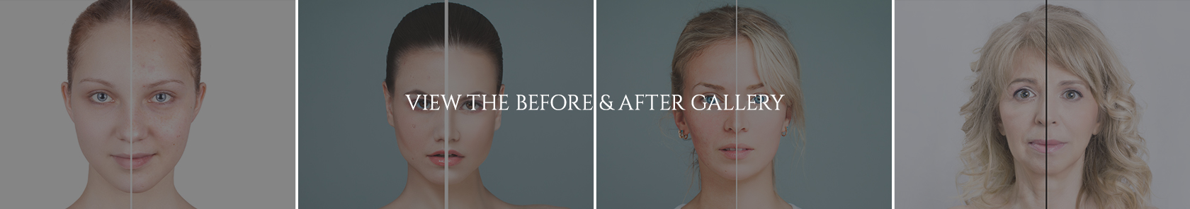 Cosmetic Before and After