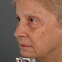 Post-Fraxel Dual Treatment in Wilmington
