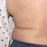 70 Year Old Female After CoolSculpting Treatment