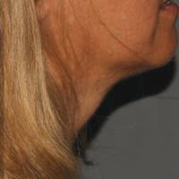 Post Treatment of Kybella Under Chin