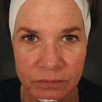 62 Year Old Female 1 Year Post Treatment with Botox