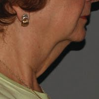 Post-Kybella Treatment in Wilmington
