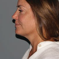 47 Year Old Female 3 Months Post Ultherapy Treatment
