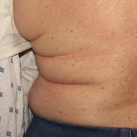 70 Year Old Female Before CoolSculpting Treatment