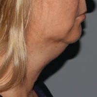 Pre Treatment of Kybella Under Chin