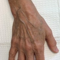 63 Year Old Female 1 Month Pre Filler Treatment