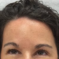 Post Treatment of Botox to Forehead