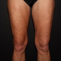 64 Year Old Female Post-CoolSculpting Treatment