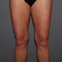 64 Year Old Female Pre-CoolSculpting Treatment