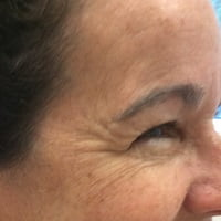 2 Weeks Pre Treatment of Botox to Crowsfeet