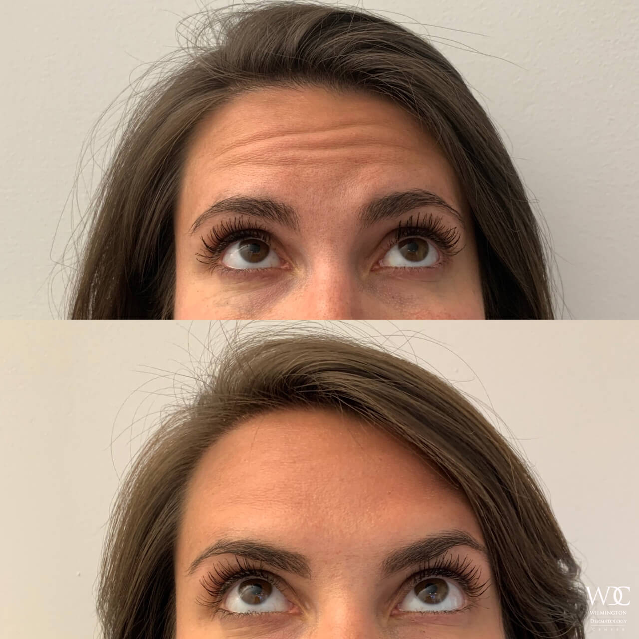 Face Botox Results in Wilmington
