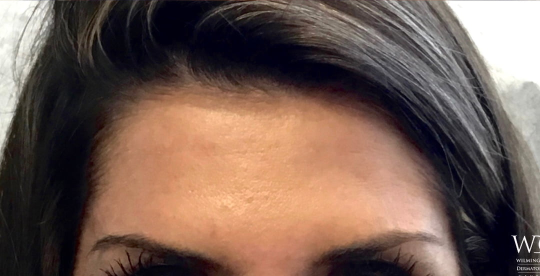 Botox to Forehead in Wilmington