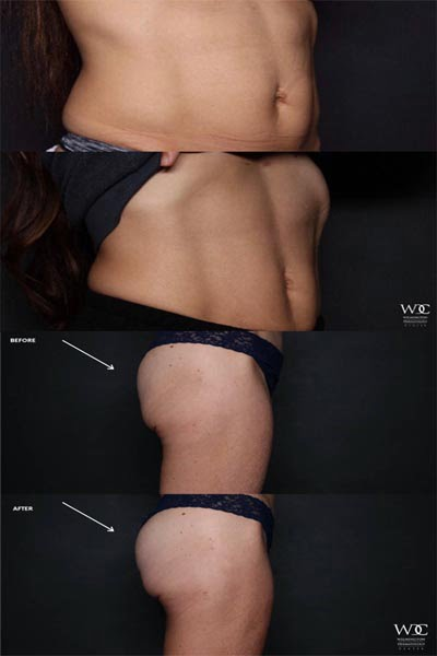 Body Contouring Treatment in Wilmington