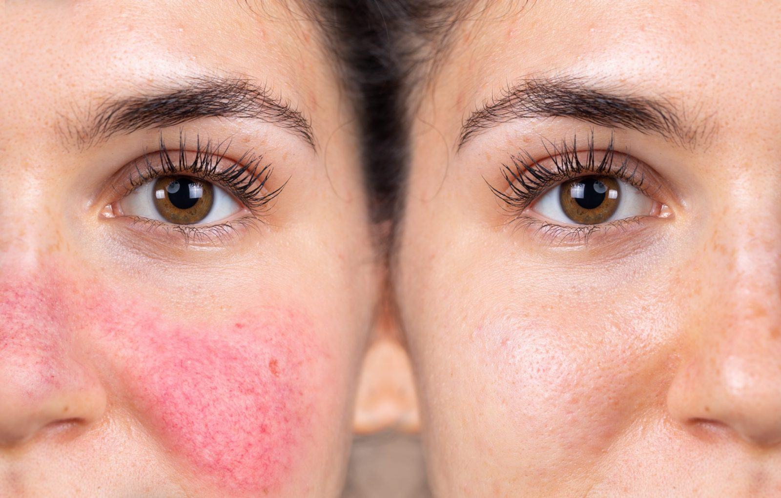 HOW TO COPE WITH ROSACEA