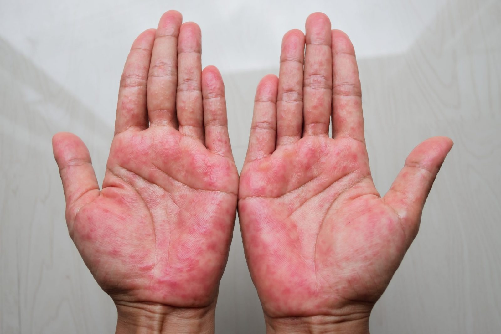 How Do I Know If I Have Atopic Dermatitis (Eczema)?