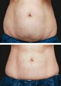 Fat Reduction in Wilmington, NC