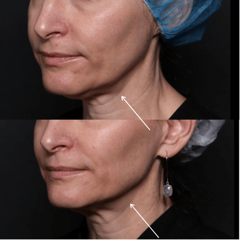 Ultherapy in Wilmington