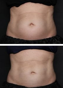 coolsculpting-best-results-in-wilmington