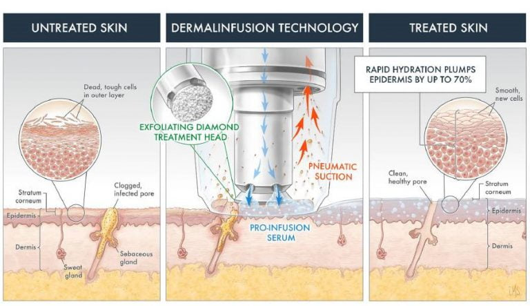 How DermalInfusion Works?