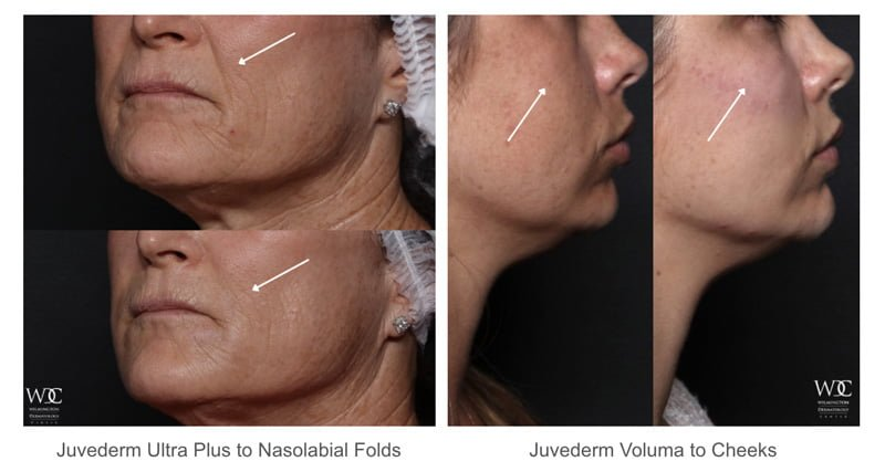 Month-Long Injectable Savings