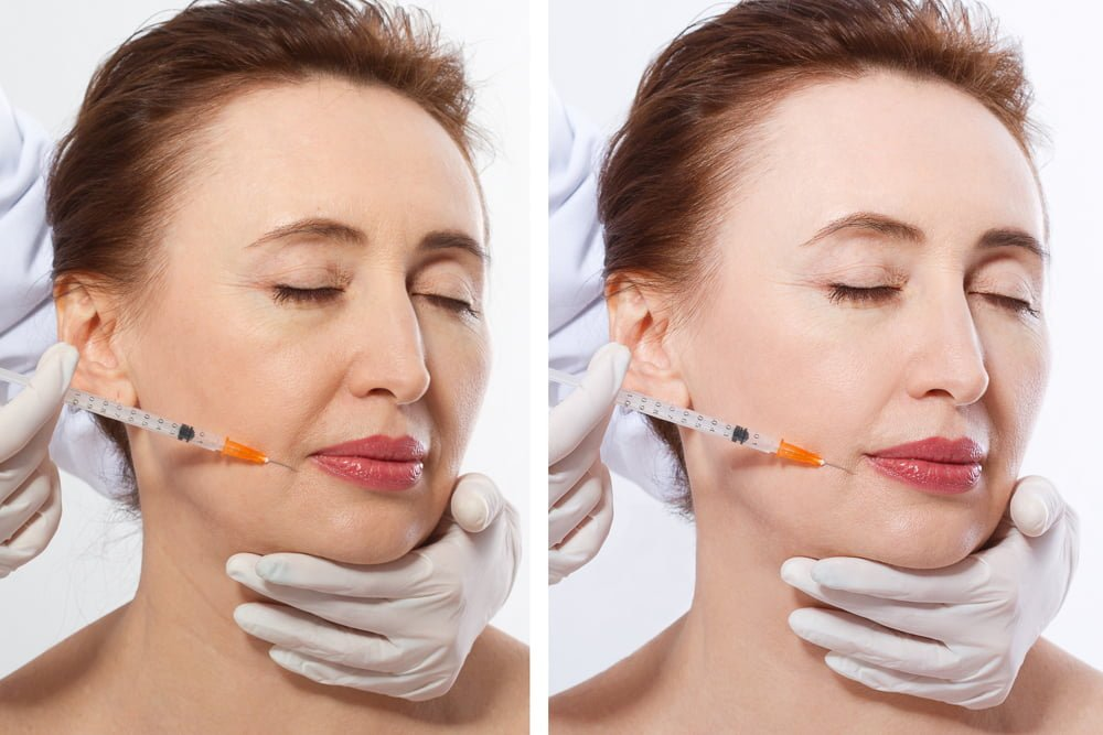 How can dermal filler injections benefit you?